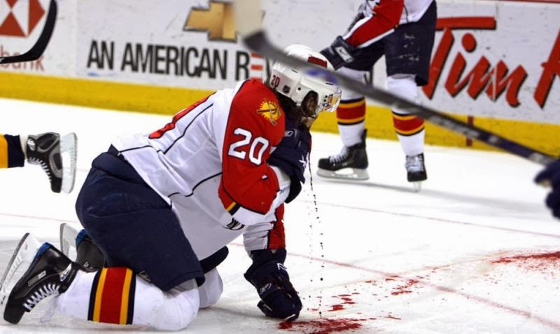Top 15 Worst Injuries In Nhl History Sse Wild